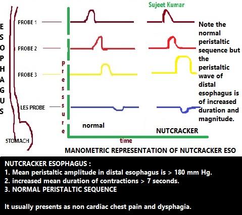 esophageal manometry medicotimes pgmee